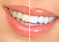 Teeth Whitening Outer Banks NC